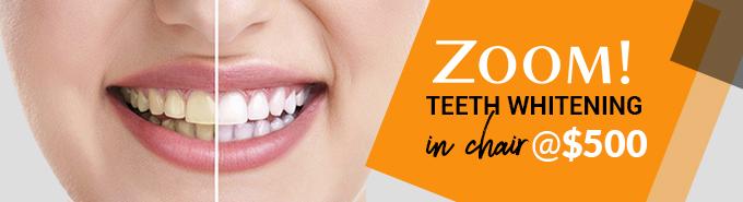 Zoom! Teeth Whitening
