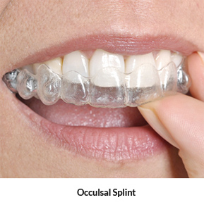 Occulsal Splint