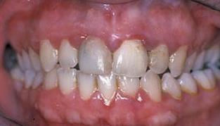 Early Periodontitis