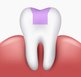 Tooth INLAY