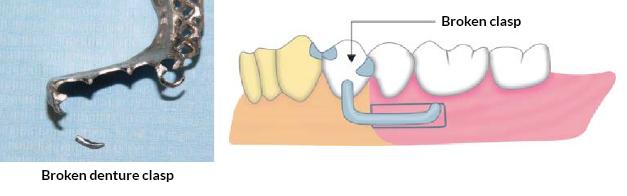 Broken Denture clasp
