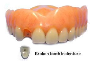 Broken Tooth in Denture
